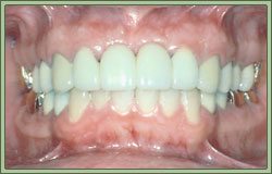 implant dentist in sun city west az 85375 frank sallustio dds ms facp diplomate prosthodontics bacrowns4b
