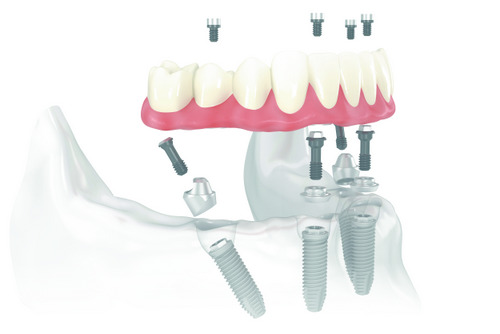 Model of All-on-4™ Treatment Concept at Frank W. Sallustio, DDS in Sun City West, AZ