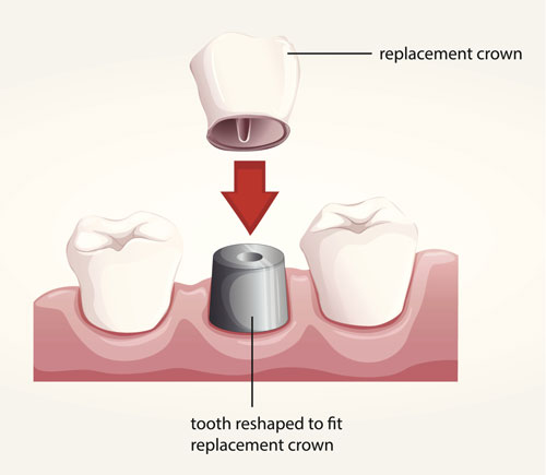 A diagram of how a dental crown works!