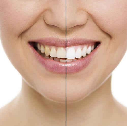 Before and after teeth whitening at Frank W. Sallustio DDS, MS, FACP in Sun City West, AZ